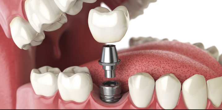 dental implants port melbourne